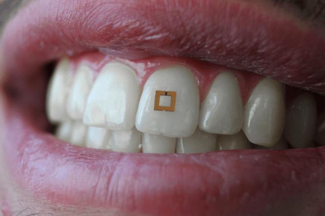Científicos desarrollan pequeños sensores montados en los dientes que pueden rastrear lo que comes
